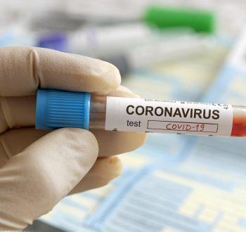 Covid-19, corona, test, prov, hand, provrör
